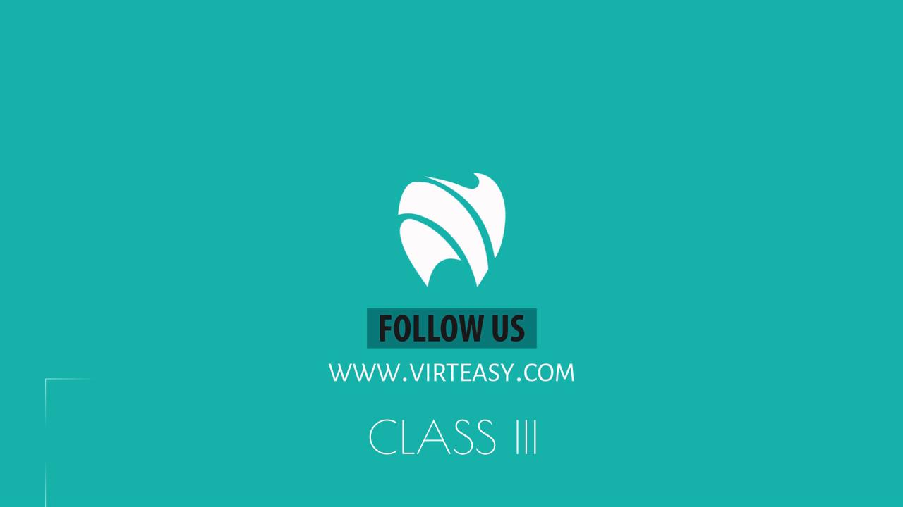 Class_III_Treatment_Virteasy_Dental