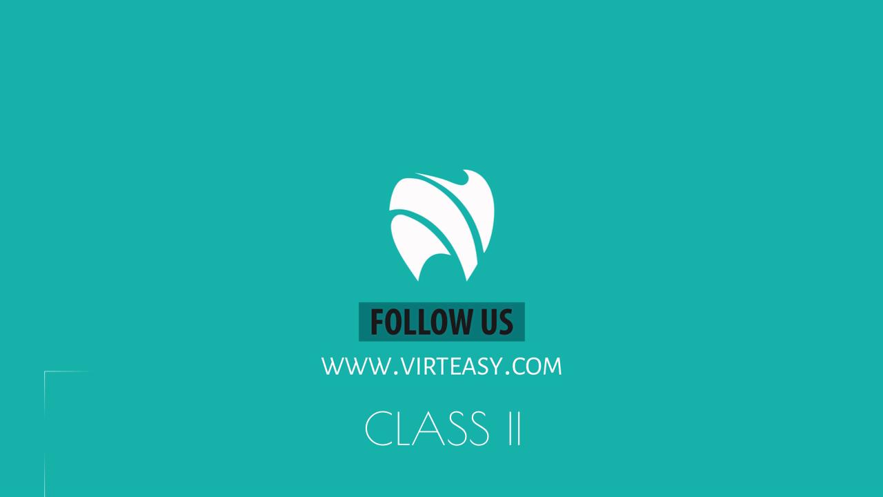 Class_II_Treatment_Virteasy_Dental