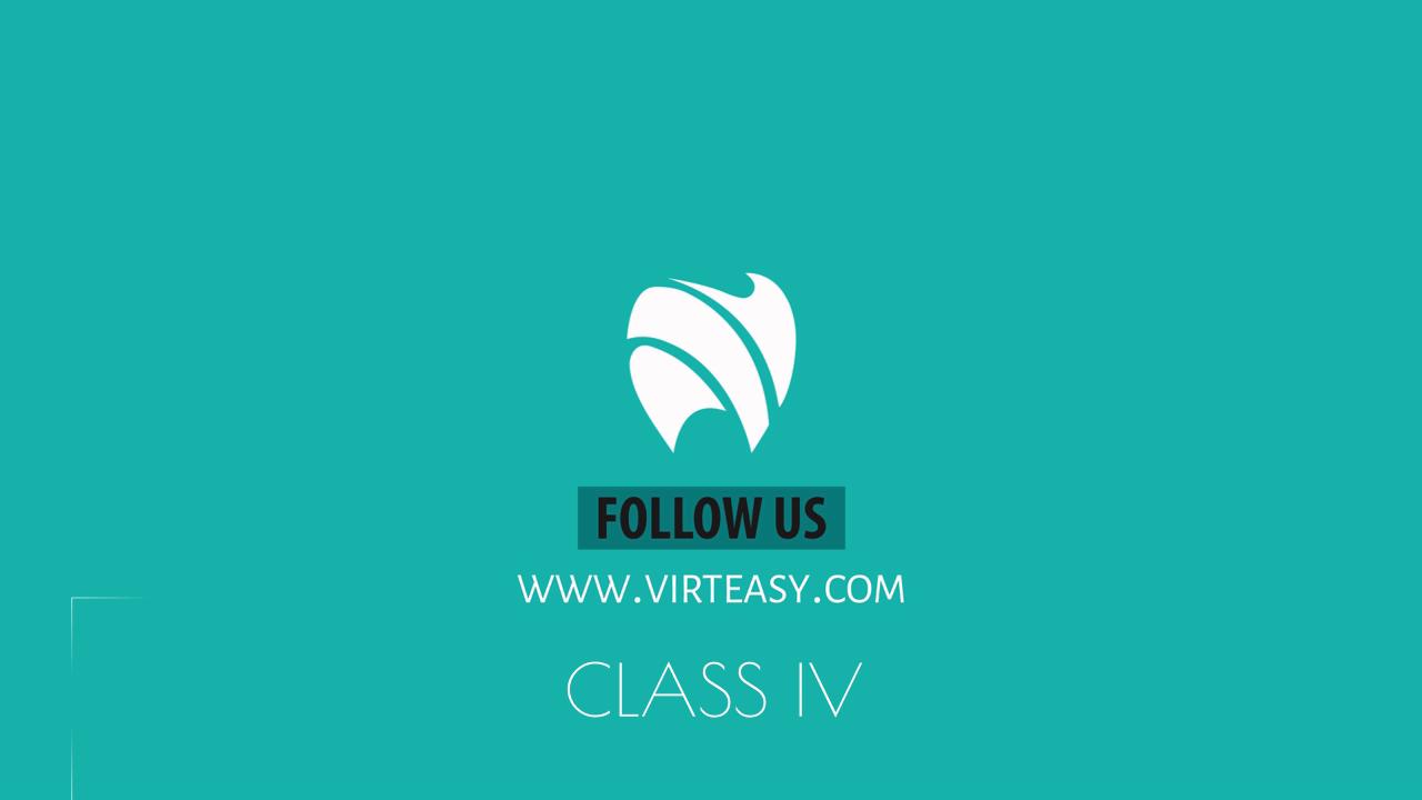 Class_IV_Treatment_Virteasy_Dental