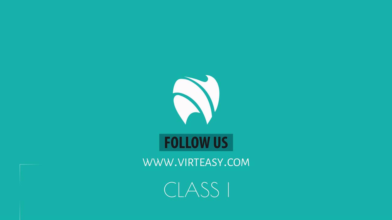 Class_I_Virteasy_Dental