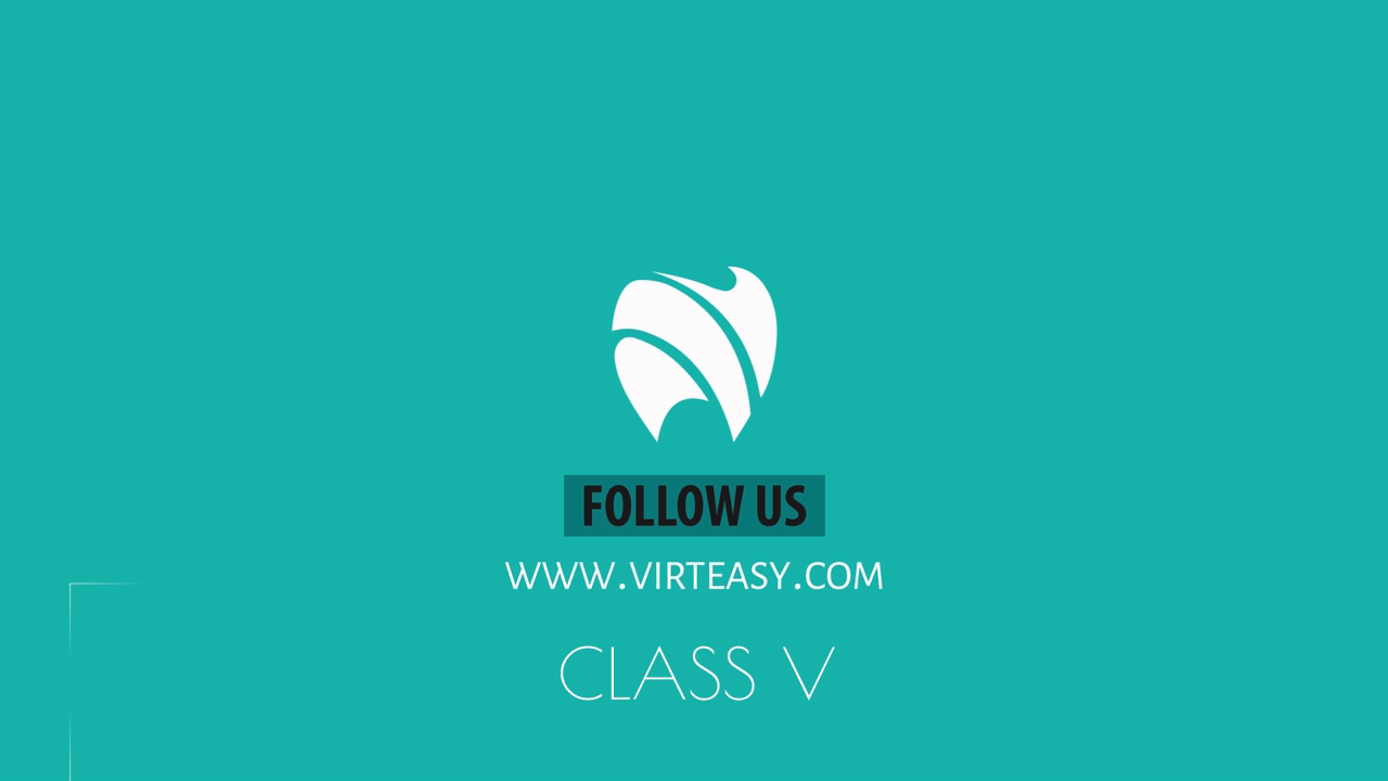 Class_V_Treatment_Virteasy_Dental